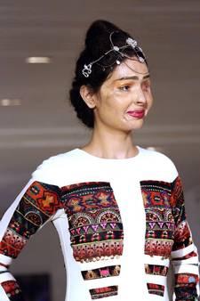 Overlever zuuraanval op de catwalk tijdens Fashion Week