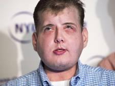 Een jaar na gezichtstransplantatie: 'er is niets wat ik niet kan'
