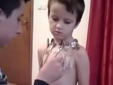 5-jarig jongetje uit Bosnië blijkt menselijke magneet