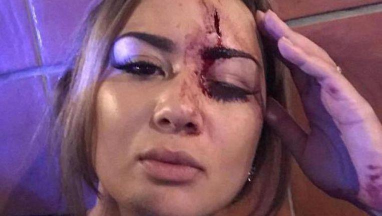 Naomie Leijder hield een hoofdwond en een dik oog over aan het incident. Beeld Facebook