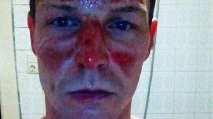 """""""Binnen met zwaar verbrand gezicht, buiten met voorschrift voor oogzalf"""""""