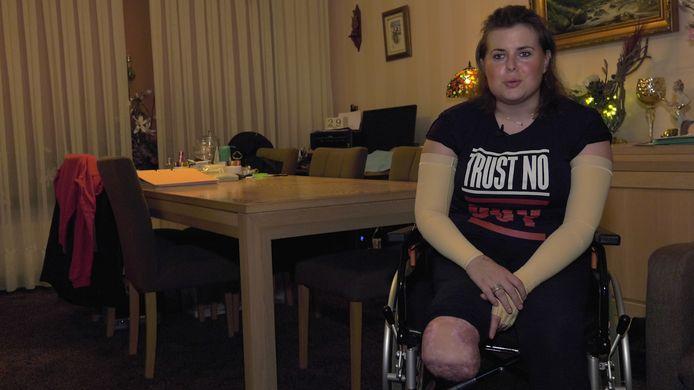 De 23-jarige Liza Veerman verloor haar onderbenen door een infectie met meningokokken type W.