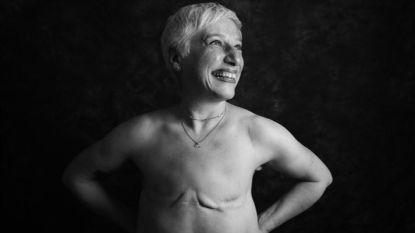 Eerlijke fotoshoot toont de ruwe realiteit van een leven met kanker