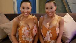 Tweeling spendeerde fortuin aan plastische chirurgie, maar wil er weer naturel uitzien (en ze delen nog steeds hun vriendje)