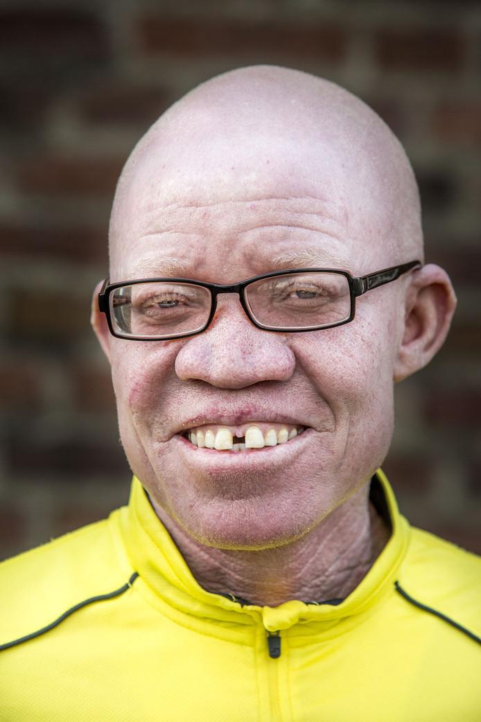 De Tanzaniaan Josephat Torner vraagt wereldwijd aandacht voor albino's in Afrika, die door bijgeloof hun leven niet zeker zijn