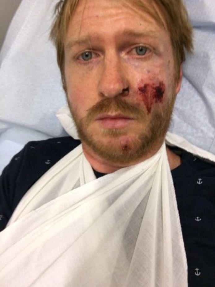 Door de val brak Scott zijn arm.