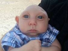 """Jaxon, le """"bébé miracle"""", est décédé dans les bras de son père"""
