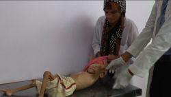 """Hulporganisatie Jemen getuigt over hongersnood: """"Er is wel voedsel maar families kunnen het niet betalen"""""""