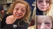 """""""Nu zwijg ik niet meer: mijn dochter werd opnieuw in elkaar geslagen door haar vriend"""""""