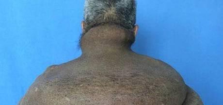 Chinese chirurgen verwijderen megatumor van bijna 15 kilo