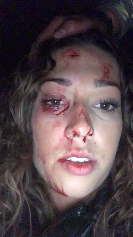 De vrouw raakte zwaargewond aan haar gezicht.