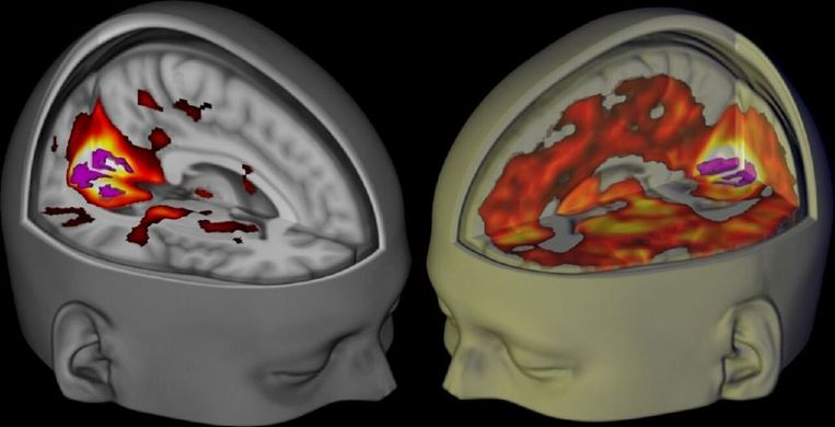 Het brein van proefpersonen, liggend en met de ogen dicht, maar wel wakker. Links na inname van een placebo, rechts met lsd. Beeld reuters