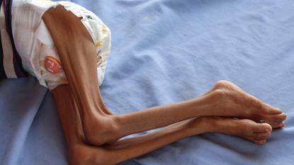 """Jemen op het randje van """"ergste hongersnood in 100 jaar"""""""
