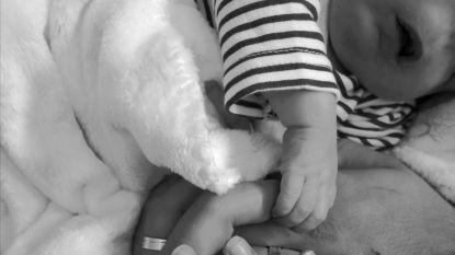 Portugese gynaecoloog geschorst nadat kind zonder gezicht wordt geboren