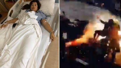 Ongelofelijk: vrouw overleeft elektrocutie door kabel met 22.000 volt
