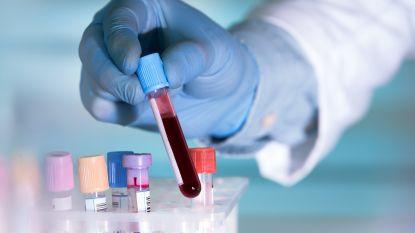 UZ Leuven start met grootschalige studie naar beloftevolle therapie voor coronapatiënten