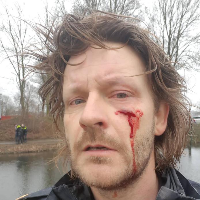 De Arnhemse wijkagent die in zijn gezicht is gestoken met een schroevendraaier door een agressieve klant van een bankfiliaal. Op de achtergrond is te zien dat de verdachte is aangehouden.