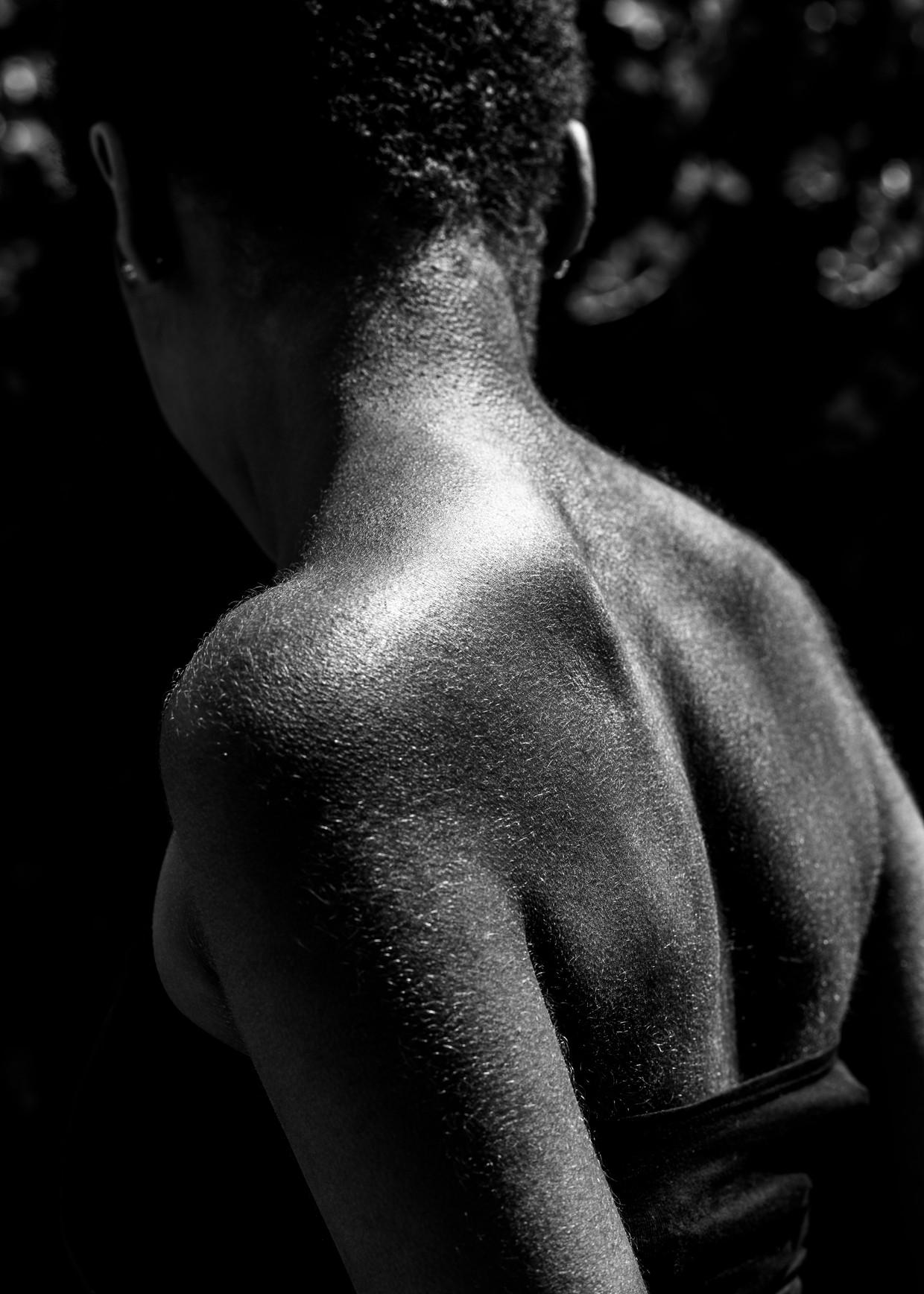 Een jonge patiënt met sikkelcelziekte heeft extra haargroei als gevolg van medicatie. De aandoening komt (nog) niet voor bij autochtone Nederlanders.