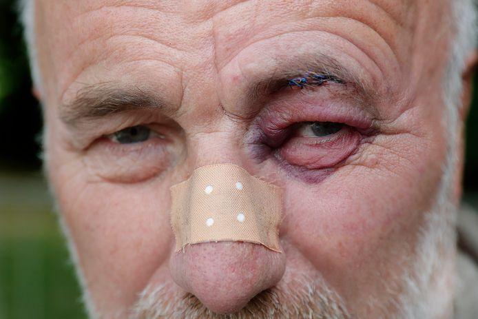Broer van den Boom met gescheurde wenkbrauw, blauw oog en kapotte neus.