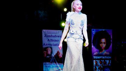 Zimbabwe kroont eerste Miss Albino