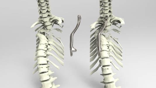 Het door het UMC Utrecht ontwikkelde titanium implantaat