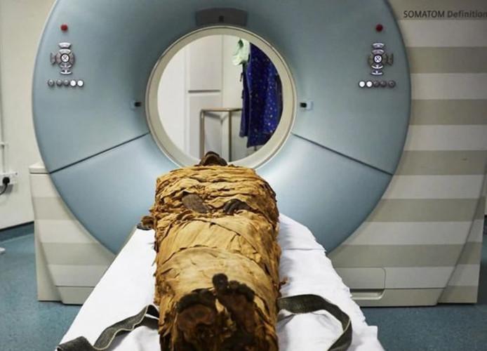 Le larynx de la momie a passé un scanner