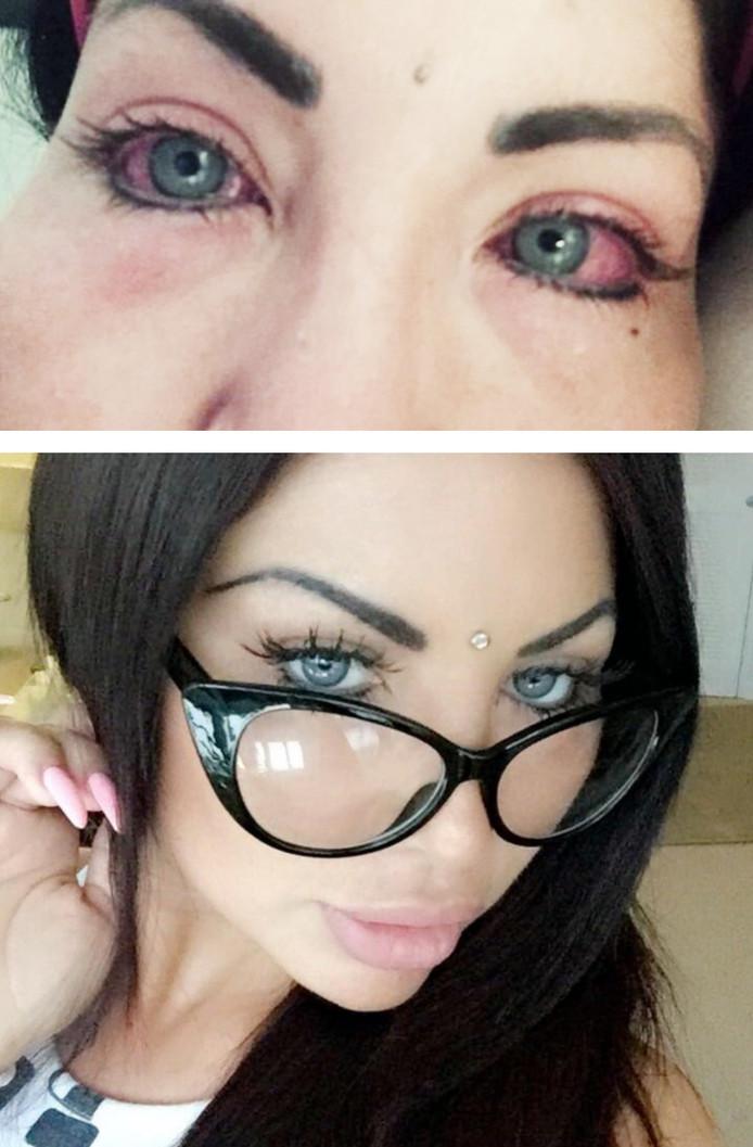 De schade na de operatie aan Nadinnes ogen is blijvend