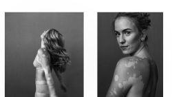 Fotograaf zet vrouwen met vitiligo in de kijker op Instagram