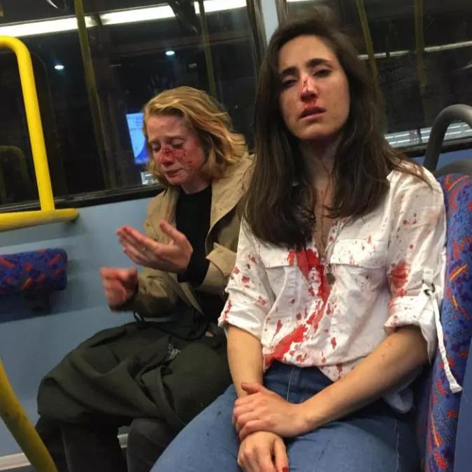 Melania Geymonat (rechts) en haar vriendin Chris werden in elkaar geslagen in een Londense stadsbus.