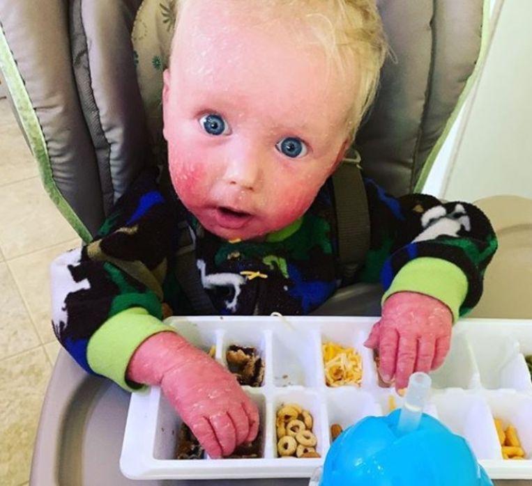 Jackson heeft sinds de geboorte ichthyosis.