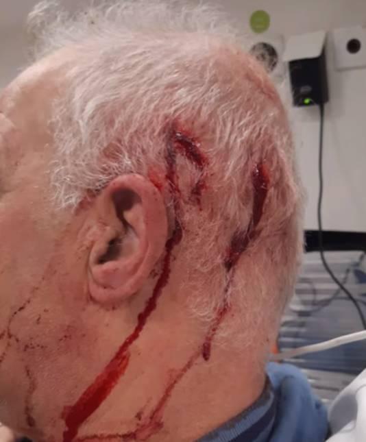 De tuinder bloedde hevig en liep een hersenschudding op bij de overval in Brakel.