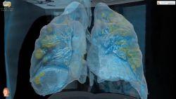 """Dit doet het coronavirus met je longen: """"Niet uitgesloten dat genezen patiënten later transplantatie nodig hebben"""""""
