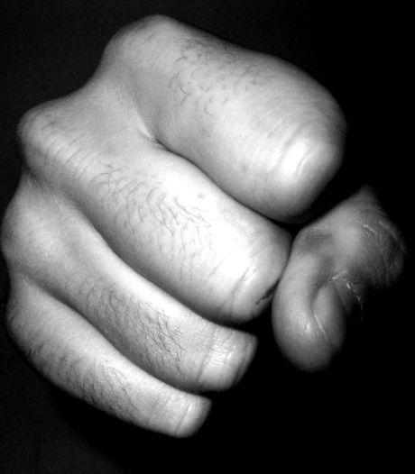 'Vervelende' huurbaas uit Apeldoorn breekt kuitbeen in ruzie met huurder