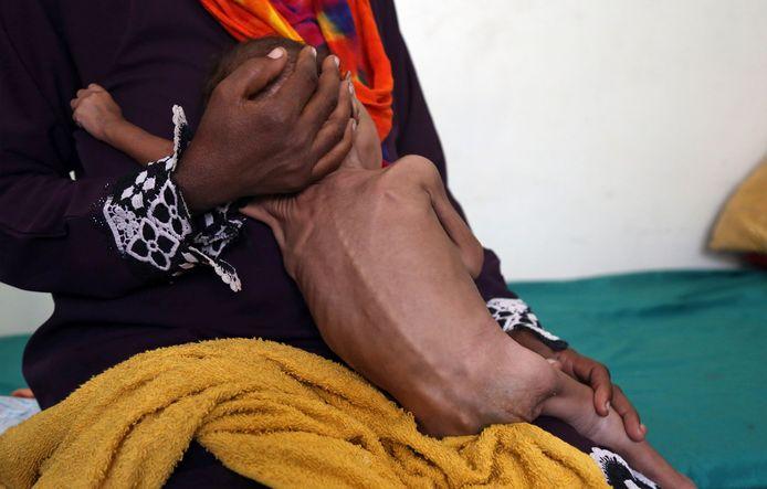 Een moeder met haar ondervoed kind in de door luchtbombardementen getroffen zuidelijke stad Taiz.