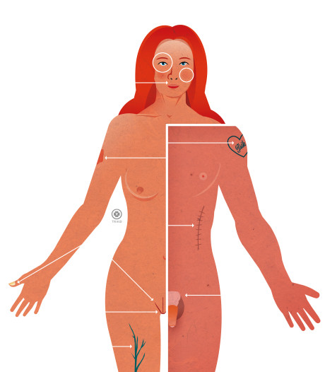 Slecht zicht, overbeharing of urineverlies? De laser lost het op
