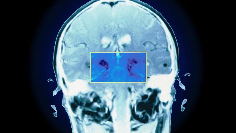 Eiwitklontering in menselijk hersenweefsel, het gevolg van de ziekte van Parkinson, zichtbaar op een MRI-scan. Beeld Hollandse Hoogte / BSIP