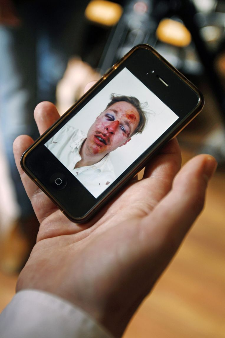 De schokkende foto die De Bruijn zelf op Facebook publiceerde. Beeld ap