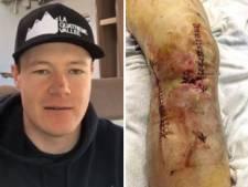 La terrible blessure qui avait failli écarter Armand Marchant des pistes de ski