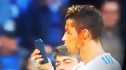 Cristiano Ronaldo bekijkt flink bebloede gezicht via gsm van clubdokter en het resultaat zint hem duidelijk niet