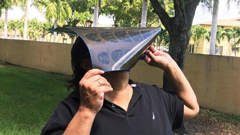 Een man kijkt door de foto van een hersenscan. Beeld