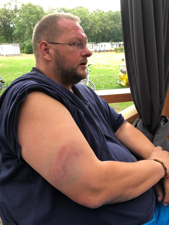 Freddy Eikelboom toont de bloeduitstorting op zijn arm die volgens hem het gevolg is van onnodig politie-optreden na Vitesse - PEC Zwolle.