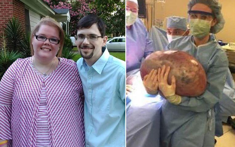 """""""Stop met frisdrank"""", vertelden dokter aan Kayla toen ze buikpijn had. Er bleek iets totaal anders aan de hand."""