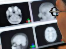 Nederlanders krijgen vaker kanker dan meeste andere EU-inwoners