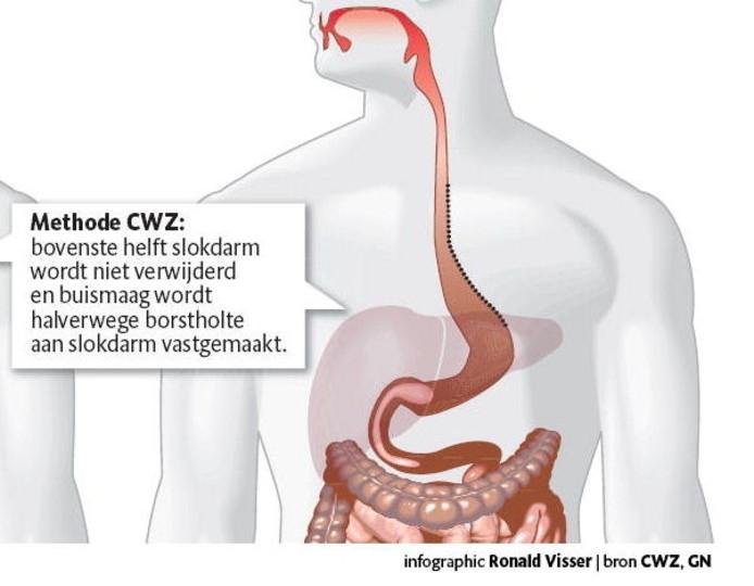 Operatie Kanker Aan Slokdarm Verbeterd Overig Bndestemnl