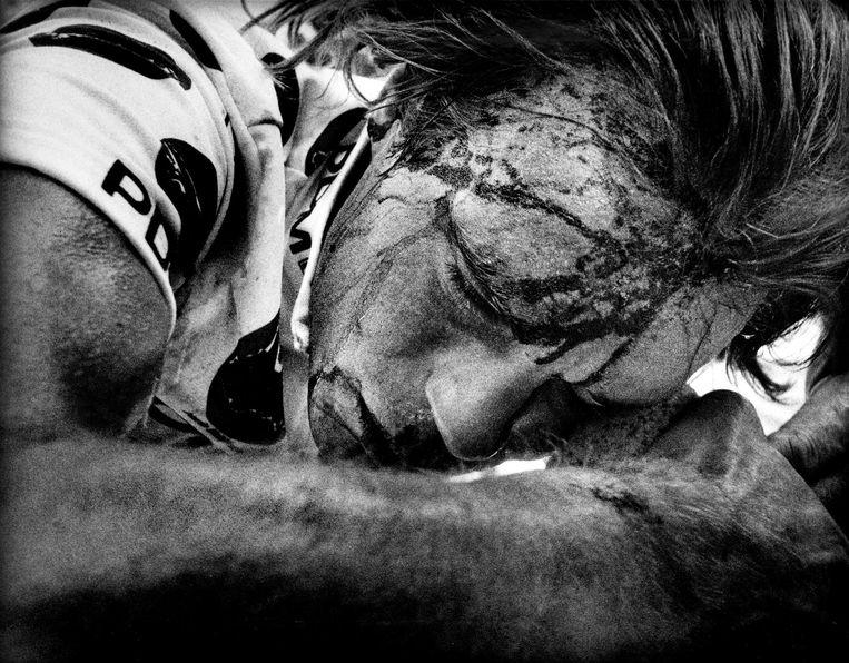 Gert-Jan Theunisse gewond in de Tour de France van 1989. Beeld ANP