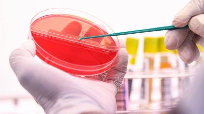 Nederlandse onderzoekers stellen vast dat coronavirus ook cellen in darmwand kan infecteren