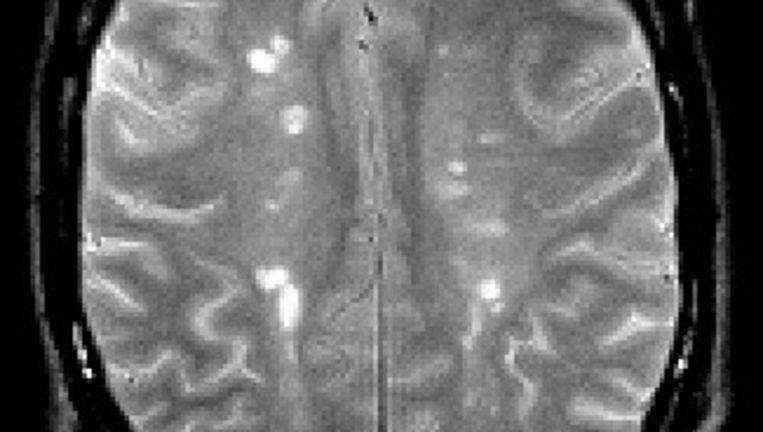 De hersenen van een MS-patiënt, met witte vlekken die er niet horen te zitten. Beeld .