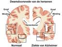 Gezonde hersenen en aangetaste hersenen die tot dementie leiden.