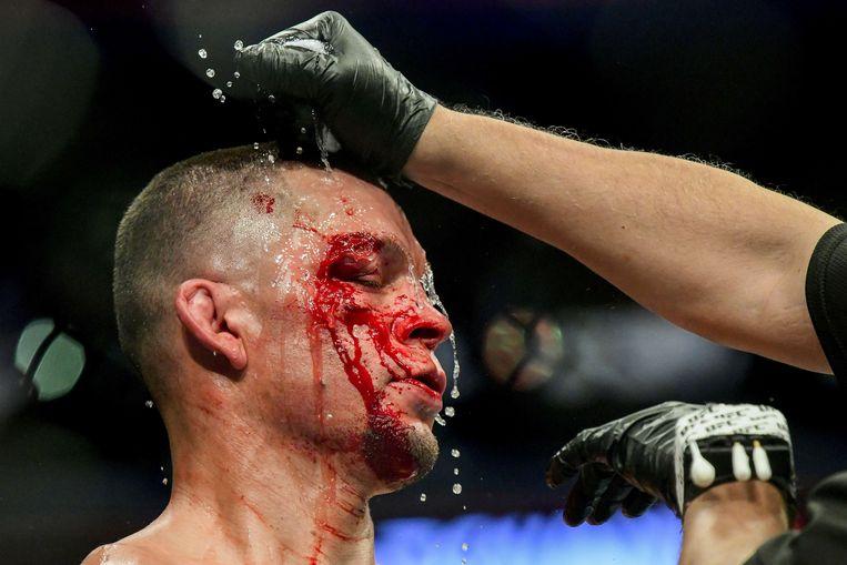 Nate Diaz kreeg het zwaar te verduren.