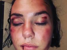 """Une jeune femme violemment agressée à Nîmes: """"Ce n'est pas à nous d'avoir honte"""""""